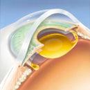 Lens Implant Restor Center